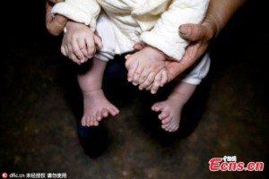 Bambino con 31 dita