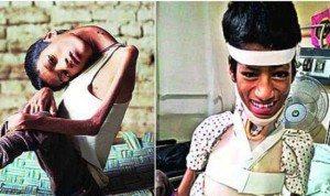 Mahendra Ahirwar, prima e dopo